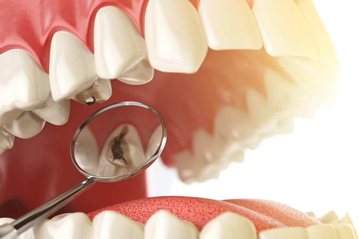 glo-modern-dental-iStock-616014686