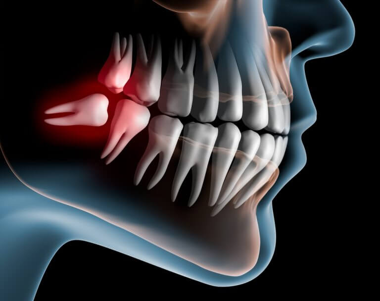 do_wisdom_teeth_need_to_be_removed_blog-768x608